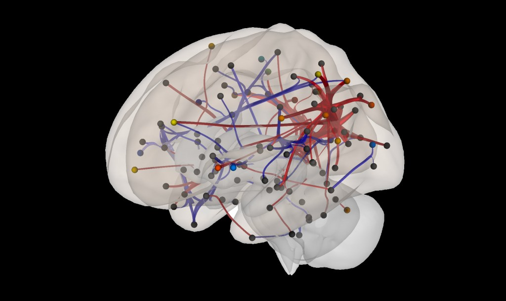 neonatal brain connectivity